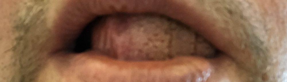 Start tounge blocking, tounge position demonstration